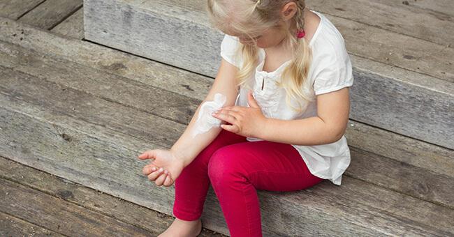 La varicella passa senza farmaci