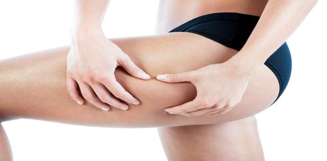 I rimedi omeopatici per combattere la cellulite